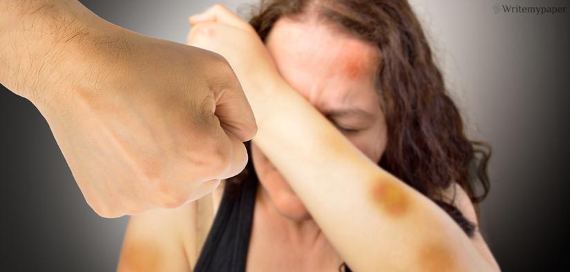 Bruises On Hand